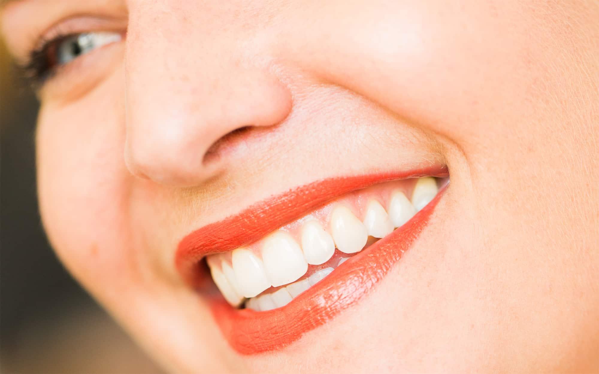 Ästhetische Zahnmedizin in Koblenz - Schöne Zähne und ein strahlendes Lächeln einer jungen Frau