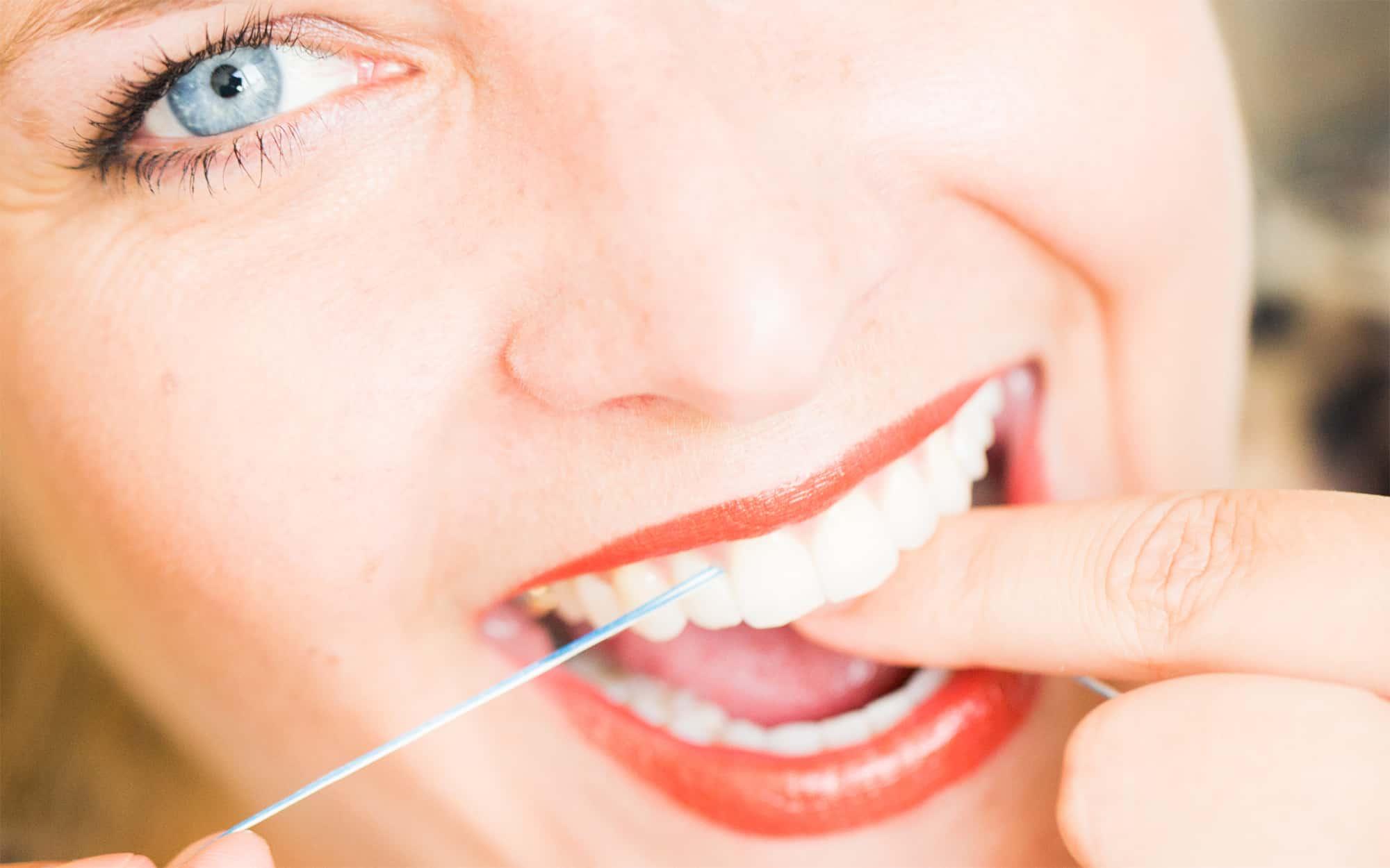 Prophylaxe bei Ihrem Zahnarzt in Koblenz - Reinigung der Zahnzwischenräumen mit Zahnseide