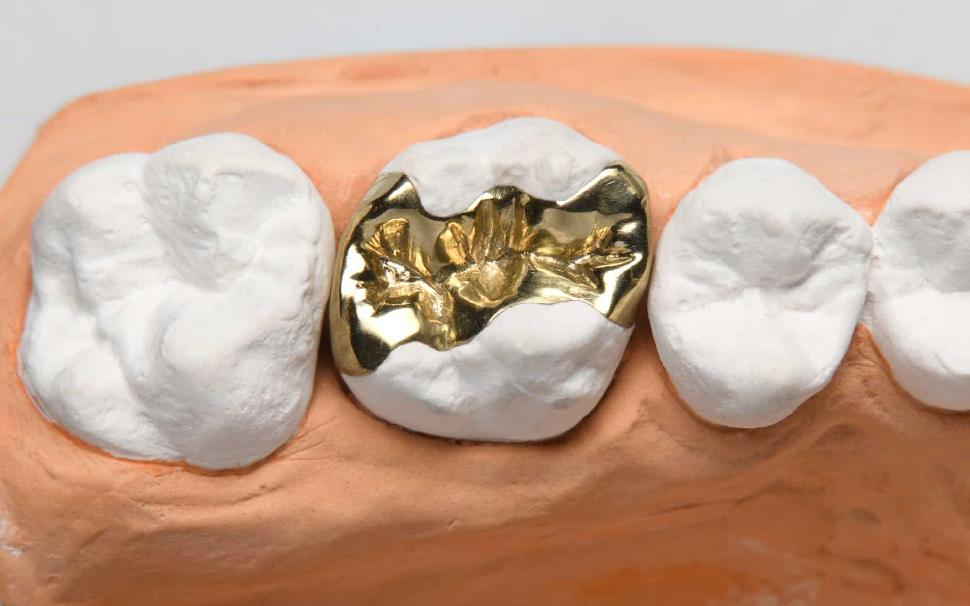 Inlays als besondere Zahnfüllungen - Goldinlay auf dem Modell