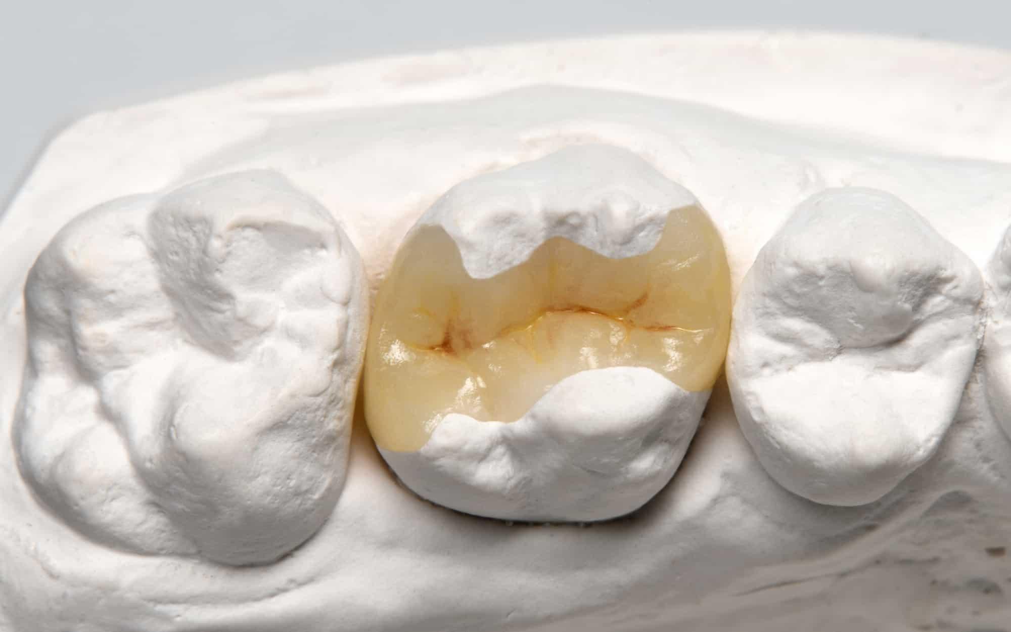 Inlays als besondere Zahnfüllungen - Keramikinlay auf weißem Modell