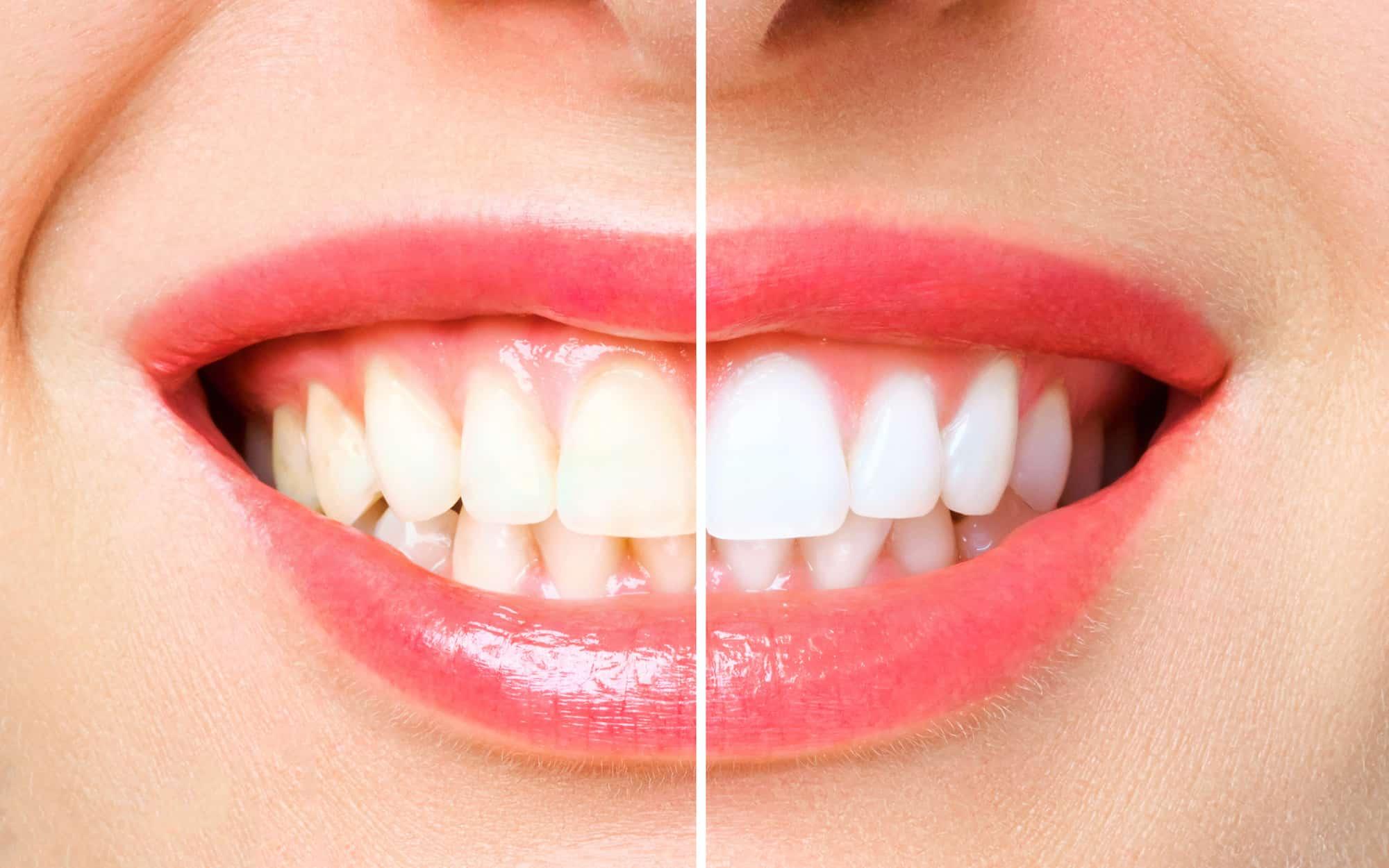 Zahnbleaching in Koblenz – weißere Zähne für ein strahlendes Lächeln in Ihrer Zahnarztpraxis Dr. Gottwald - Zähne einer jungen Frau vor und nach dem Bleaching