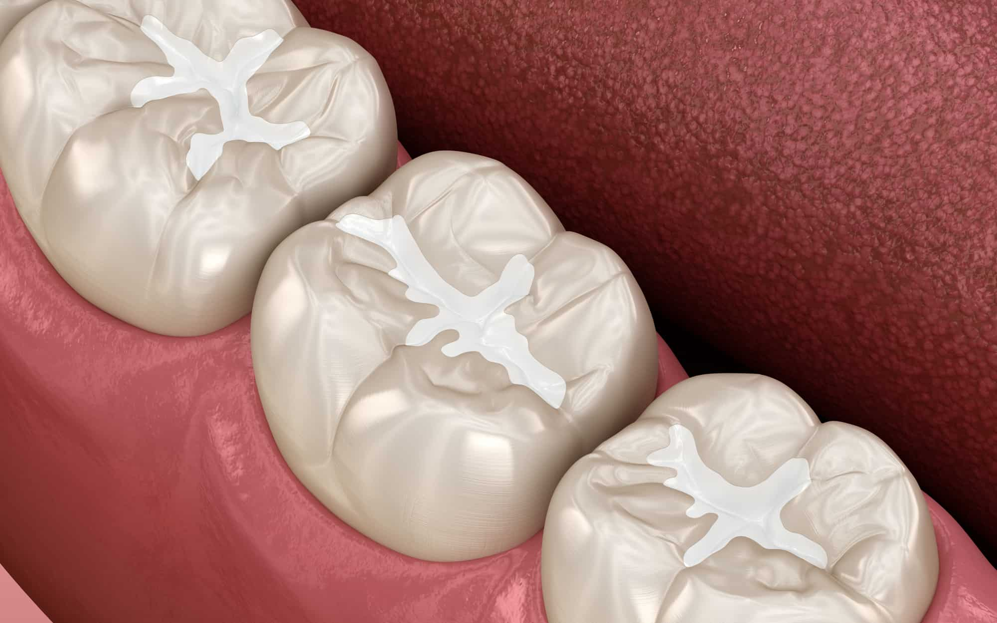 Medizinische 3D-Darstellung einer Fissurenversiegelung